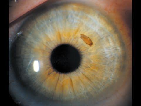 أعراض خدش القرنية علاج خدش القرنية الأسباب والأعراض والتشخيص والعلاج قرنية العين العدسات اللاصقة خدوش القرنية إصابات العين
