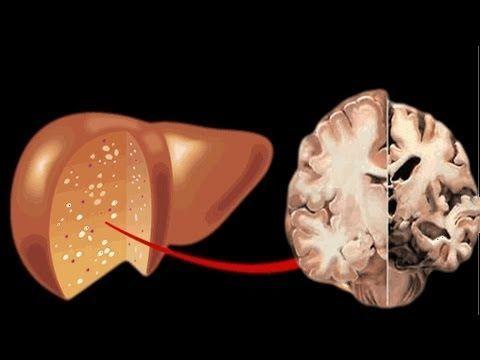 الاعتلال الدماغي الكبدي: الأسباب والاعراض والتشخيص والعلاج