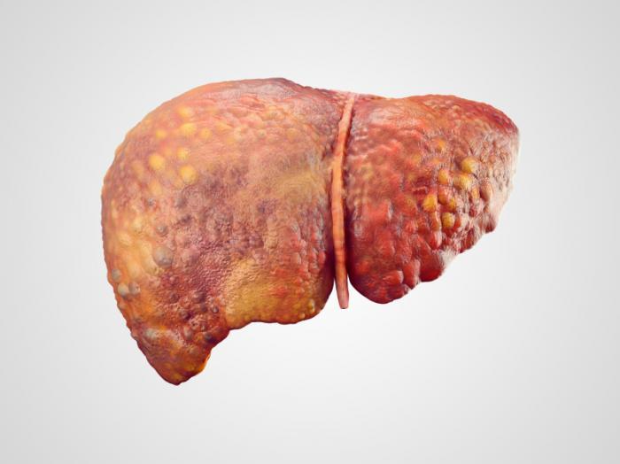 الكبد الدهني غير الكحولي Nonalcoholic fatty liver disease الأسباب والأعراض والتشخيص والعلاج ترسبات من الدهن داخل الكبد الدهون في الكبد