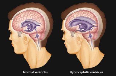 استسقاء الدماغ أو موه الرأس: الأسباب والأعراض والتشخيص والعلاج تراكم السائل الدماغي الشوكي في تجاويف الدماغ ارتفاع الضغط داخل القحف