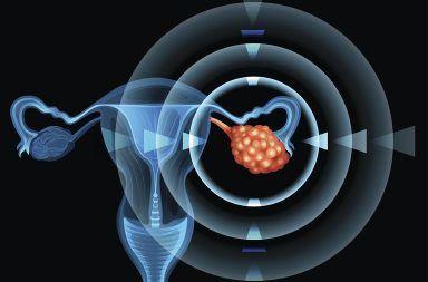 أورام المبيض الحميدة Noncancerous Ovarian Growths الأسباب اولأعراض والتشخيص والعلاج الأكياس الوظيفية الأورام الليفية الأورام الحميدة