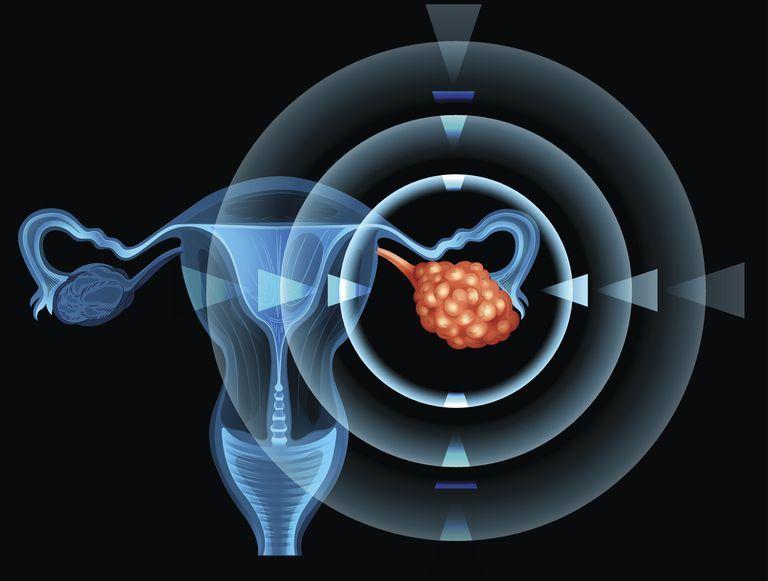 أورام المبيض الحميدة Noncancerous Ovarian Growths