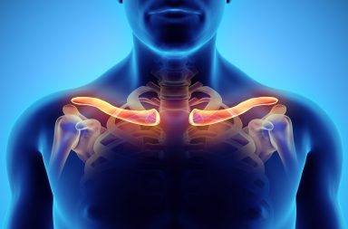 متلازمة مخرج الصدر: الأسباب والأعراض والتشخيص والعلاج - مجموعة من الحالات التي تنشأ عندما تصبح الأوعية الدموية والأعصاب في مخرج الصدر مضغوطة
