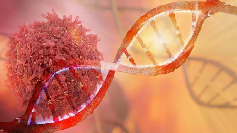 متلازمة سرطان الثدي والرحم الوراثية