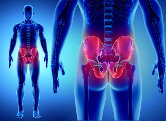 كسر مفصل الفخذ (كسر الورك): الأسباب والأعراض والتشخيص والعلاج