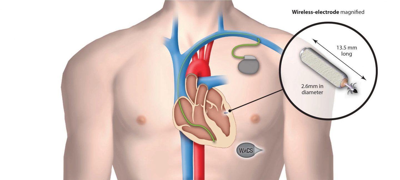 منظم ضربات القلب اللاسلكي الجديد يمنع حدوث المضاعفات الشائعة