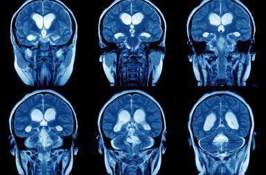 ما هي المرونة العصبية ولماذا هي مهمة اللدونة، الليونة العصبية أو مطاوعة الدماغ قدرة الدماغ على تعديل روابطه أو تغييرها تشكيل المشابك العصبية