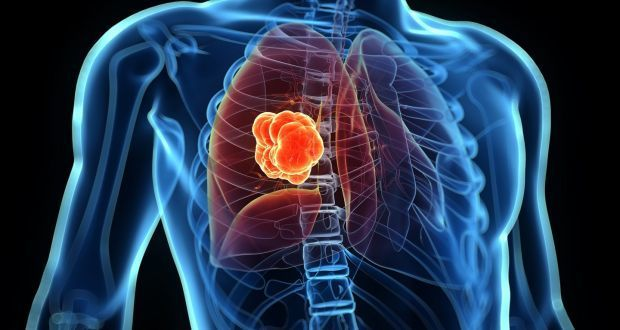 سرطان الرئة lung cancer: الأسباب والأعراض والتشخيص والعلاج أخطر وأشيع أنواع السرطانات السعال المتكرر ضيق في التنفس السعال الدموي