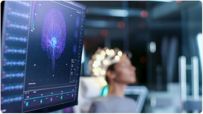 الذكاء الاصطناعي يمكنه تحويل نشاط المخ إلى كلمات! - أقطاب كهربية بعد تثبيتها جراحيًّا بالمخ وتوصيلها بالحاسوب - تحويل إشارات الدماغ لكلام