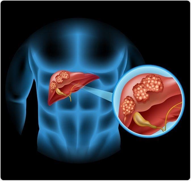 أعراض سرطان الأوعية الصفراوية علاج سرطان الأوعية الصفراوية الأعراض والأسباب والتشخيص والعلاج التهاب الكبد السرطان الأمعاء
