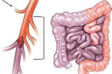 الإقفار المساريقي الحاد أو الجلطة المعوية Acute Mesenteric Ischemia الأسباب والأعراض والتشخيص والعلاج توقف مفاجئ في جريان الدم إلى جزء من الأمعاء