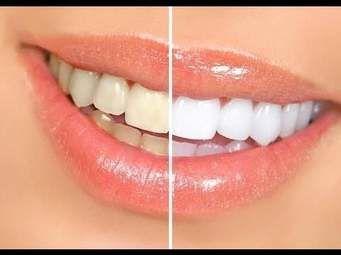 تبييض الاسنان كيف يتم ، وهل للعملية اثار على المدى الطويل ؟