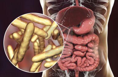 داء ويبل: الأسباب والأعراض والتشخيص والعلاج Whipple's Disease فقدان الوزن والتهاب المفاصل والسعال المزمن والحمى إنتان جرثومي