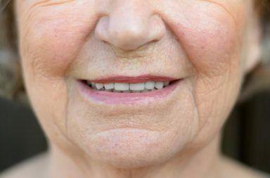 منبر البحوث المتخصصة والدراسات العلمية  يشاهده  23456 زائر Laughter-lines-mouth-384x253