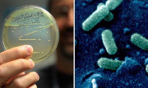 داء الليستريات: الأسباب والأعراض والتشخيص والعلاج مرض ينتقل عن طريق الطعام الملوث بجراثيم الليستريا Listeria ضعف الجهاز المناعي