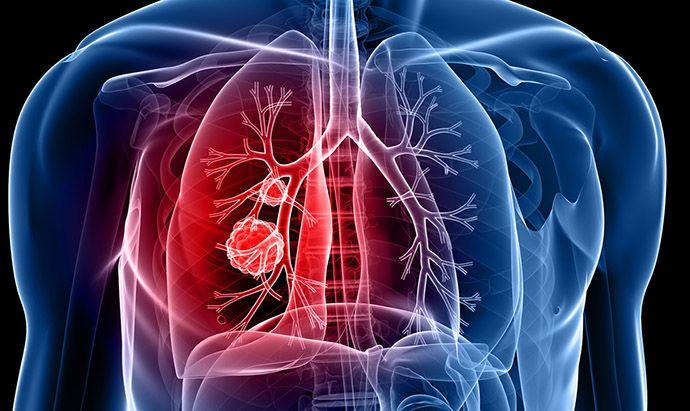 يعزز دواء جديد لسرطان الرئة مستوى العلاج، فما هي آلية عمله؟