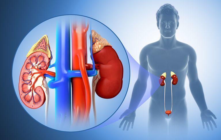 التهاب الحويضة والكلية: الأسباب والأعراض والتشخيص والعلاج
