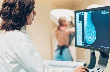 الذكاء الاصطناعي يتفوق على البشر في تشخيص سرطان الثدي - الفحص الدوري هو الطريقة الأفضل للكشف عن العلامات المبكرة للسرطان - اكتشاف السرطان