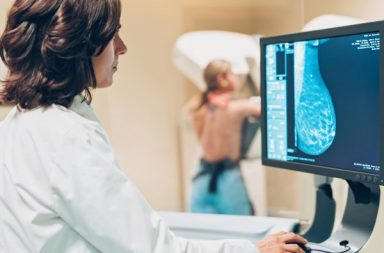 الذكاء الاصطناعي يتفوق على الأطباء في تشخيص سرطان الثدي! - صور الأشعة للكشف عن سرطان الثدي - الفحوصات المنتظمة والتشخيص الدقيق للسرطان