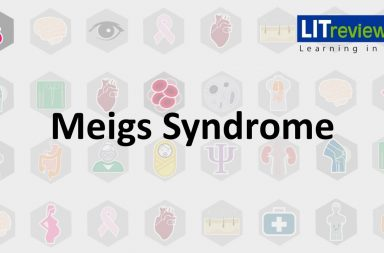 متلازمة ميغز: الأسباب والأعراض والتشخيص والعلاج - أورام المبيض الليفية هي أكثر الأورام الحميدة التي تظهر في متلازمة ميغز - الاستبعاد في التشخيص