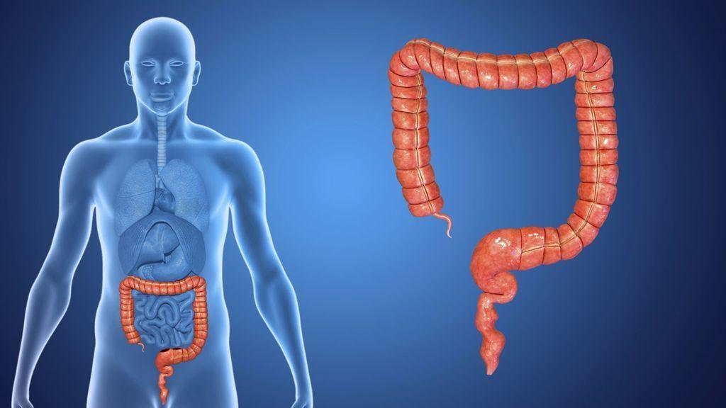 حقائق و معلومات هامة عن سرطان القولون