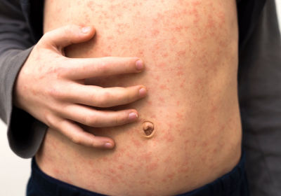 بوسع فيروس الحصبة محو ذاكرة جهازك المناعي! - فيروس الحصبة يملك القدرة على إعاقة الجهاز المناعي بشدة وباستمرار - التسلل إلى داخل الخلايا المناعية