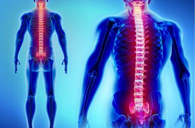 التهاب النخاع المعترض: الأسباب والأعراض والتشخيص والعلاج Transverse Myelitis - حالة طبية تسبب أذية مادة الميالين في الجهاز العصبي