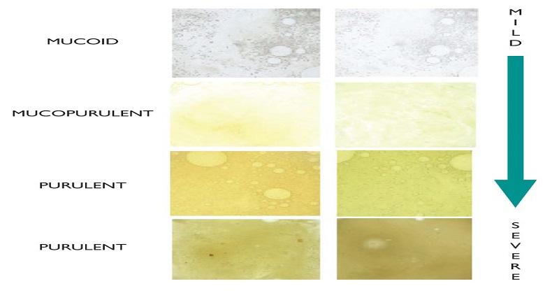 على ماذا يدل لون المخاط الخاص بِك ؟
