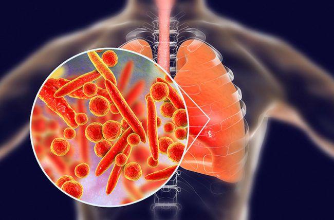 ذات الرئة بالمفطورات: الأسباب والأعراض والتشخيص والعلاج