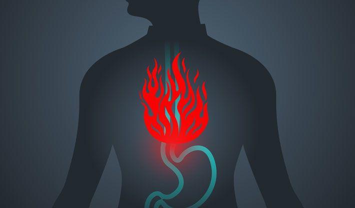 الارتجاع المعدي المريئي: الأسباب والأعراض والتشخيص والعلاج