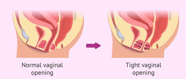 التشنج المهبلي - الأسباب والأعراض والتشخيص والعلاج - تتقلص عضلات المهبل لا إراديًّا - الإثارة الجنسية - الإيلاج - الاستمتاع بالأنشطة الجنسية