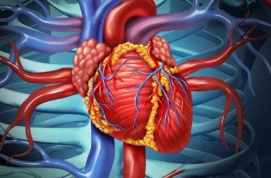 تضيق الصمام التاجي Mitral Valve Stenosis الأسباب والأعراض والتشخيص والعلاج الجانب الأيسر من القلب الشريان الأبهر الخارج من القلب