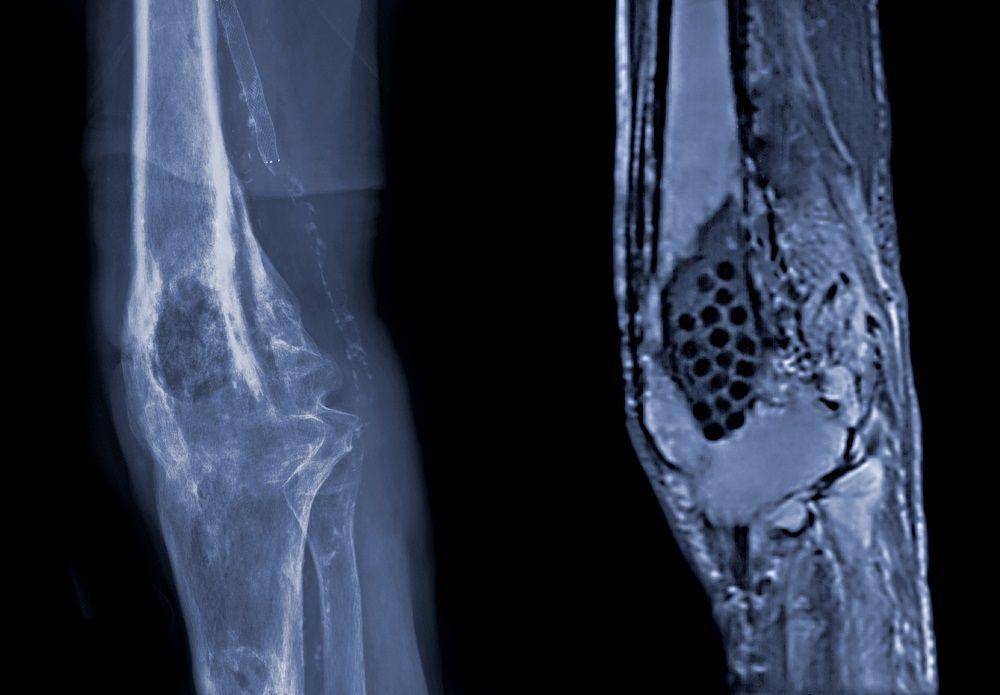 التهاب العظم والنقي: الأسباب والأعراض والتشخيص والعلاج عدوى بكتيرية أو فطرية تنتقل من المجرى الدموي إلى نسيج العظم تشنج عضلي في منطقة الالتهاب