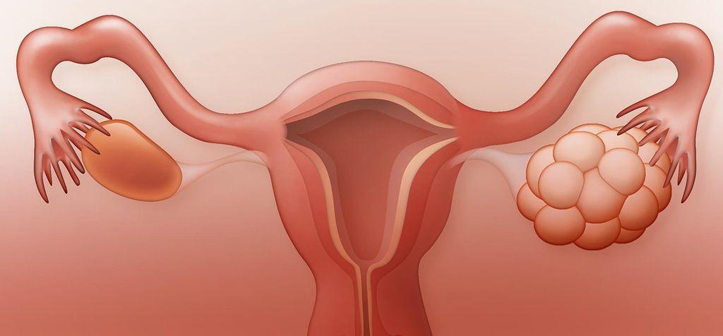 متلازمة المبيض متعدد الكيسات: الأعراض والأسباب والعلاج حالة مرضية تؤثر على مستويات الهرمونات عند النساء إفراز كميات كبيرة من الهرمون الذكري