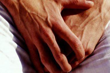 سرطان القضيب: الأسباب والأعراض وسبل العلاج Penile-cancer-384x384-384x253