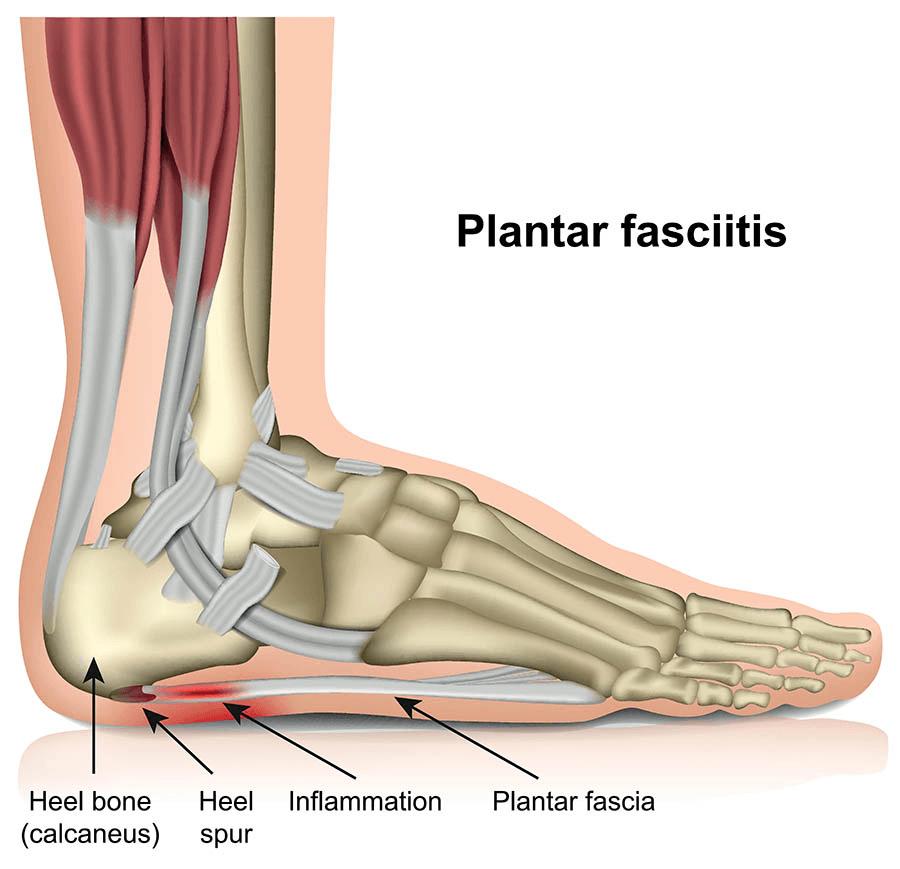 التهاب اللفافة الأخمصية Plantar Fasciitis الأسباب والأعراض والشخيص والعلاج فاللفافة الأخمصية plantar fascia هي رباط ثخين كالشبكة يربط بين عقب قدمك ومقدمتها