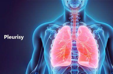التهاب الجنبة pleurisy: الأسباب والأعراض والتشخيص والعلاج التهاب الغشاء المغطي للرئة ألم طاعن في الصدر أسباب مرض التهاب الجنبة