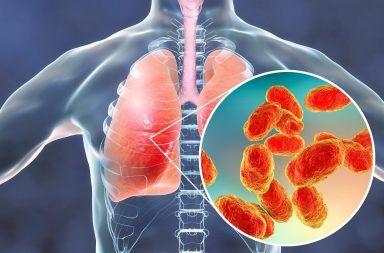 ذات الرئة الفيروسية: الأسباب والأعراض والتشخيص والعلاج عدوى فيروسية تسبب التهابا في الرئتين ذات الرئة الجرثومية العدوى الفيروسية المسببة للإنفلونزا