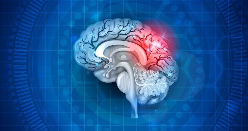 متلازمة ما بعد الارتجاج: الأسباب والأعراض والتشخيص والعلاج متلازمة ما بعد الضربة الصادمة إصابة دماغ رضية خفيفة إصابات الرأس