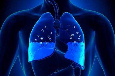 وذمة الرئة: الأسباب والأعراض والتشخيص والعلاج تراكم السوائل في الحويصلات الرئوية (الأسناخ) قصور القلب الاحتقاني congestive heart failure