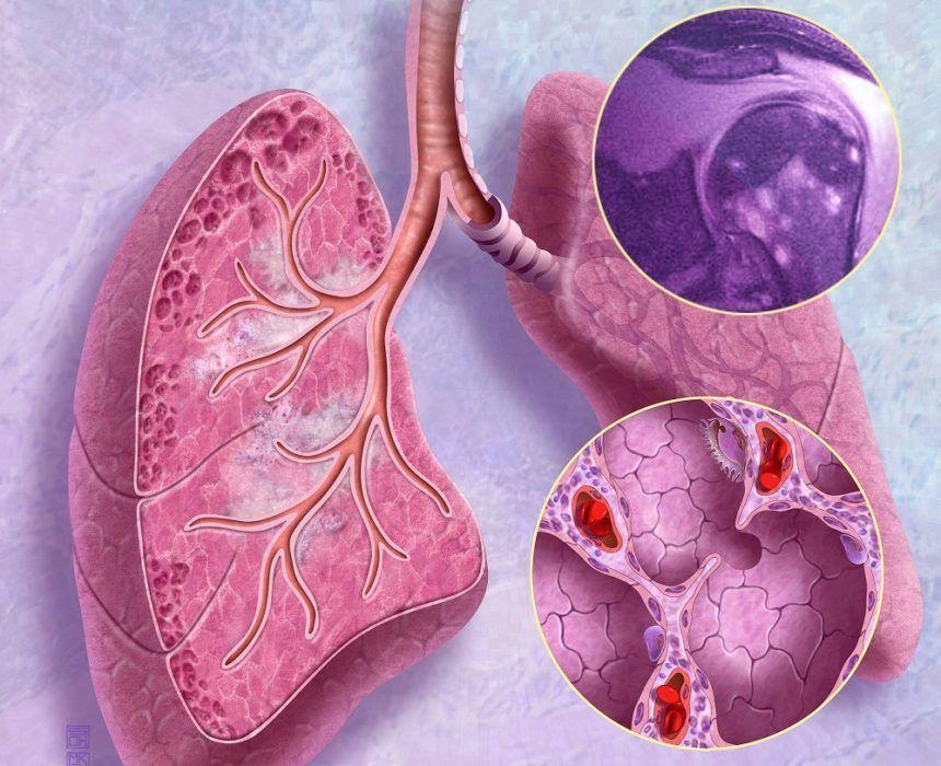 الساركويد: الأسباب والأعراض والتشخيص والعلاج