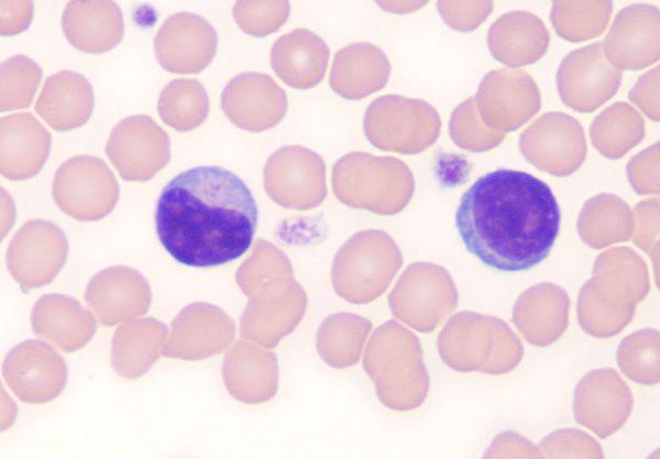 ما الخلايا اللمفاوية وما المستويات الصحية لها الخلايا البائية الذاكرة التائية القاتلة الطبيعية الخلايا المناعية الجهاز المناعي المناعة