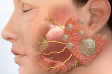 أورام الغدد اللعابية: الأسباب والأعراض والتشخيص والعلاج كيف تعالج الأورام التي تصيب الفم ما هي فرصة النجاة من سرطان الغدد اللعابية