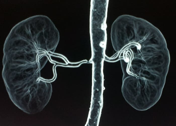 تضيق الشريان الكلوي Renal Artery Stenosis الأسباب والأاعراض والتشخيص والعلاج حالة تتضيق فيها الشرايين التي تزود الكليتين بالدم