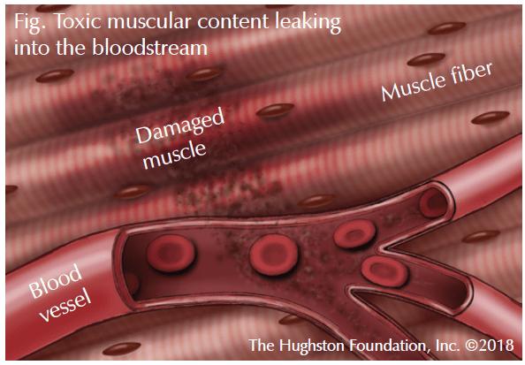 انحلال الربيدات: الأسباب والأعراض والتشخيص والعلاج Rhabdomyolysis هو انهيار في العضلات الهيكلية المتأذية والمتضررة تحرر الميوغلوبين