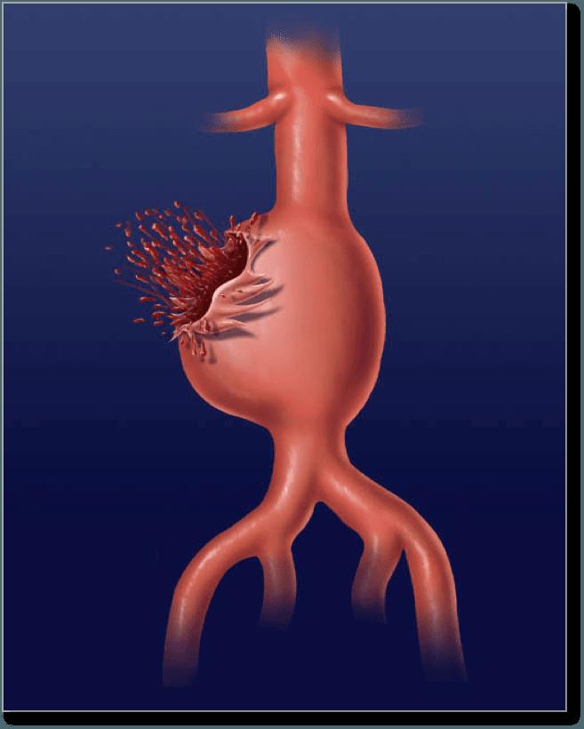 ما هي أمهات الدم الأبهرية البطنية الأمراض التي تصيب جهاز الدوران الشريان الأبهر الدم القدم إلى البطن أسباب الأمهات الدموية أعراض الأمهات الدموية