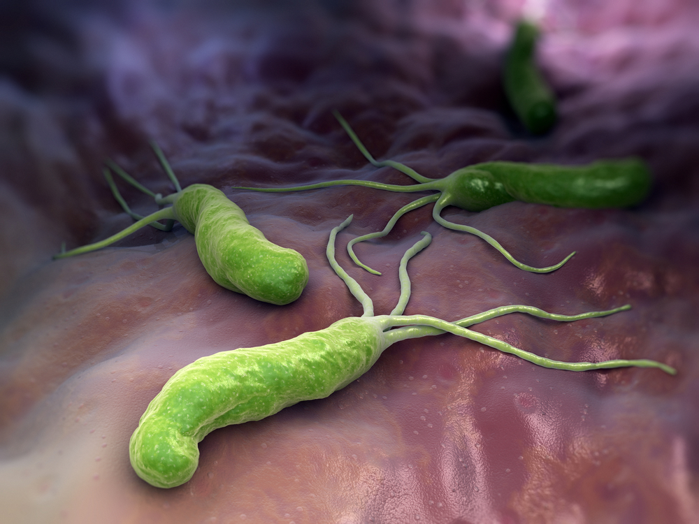 كيف تصمد البكتريا الملوية البوابية المسببة لعدوى و قرحة المعدة في بيئة المعدة الحامضية ؟