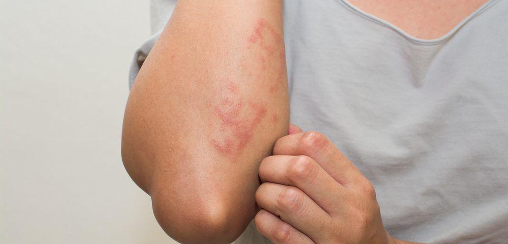 الساركويد: الأسباب والأعراض والتشخيص والعلاج مرض التهابي يصيب عضوًا واحدًا أو أكثر من جسم الإنسان خاصةً الرئتين والعقد اللمفاوية