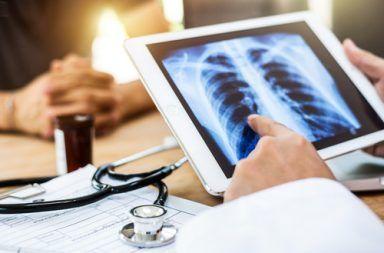 التهاب الأوعية المجهري Microscopic Polyangiitis الأسباب والأعراض والتشخيص والعلاج التهاب الأوعية الدموية vasculitis الورم الحبيبي