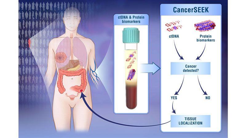 اختبار دموي واحد يكشِف عن ثمانية أنواع من السرطانات